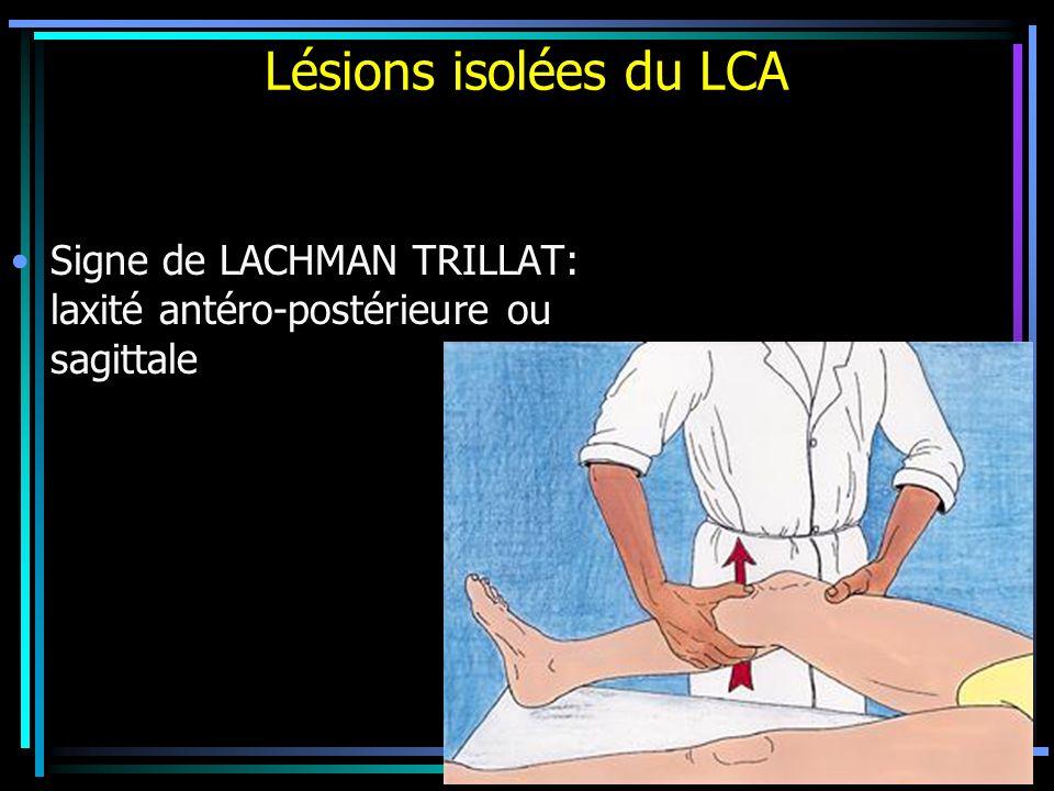 Signe de LACHMAN TRILLAT: laxité antéro-postérieure ou sagittale Lésions isolées du LCA