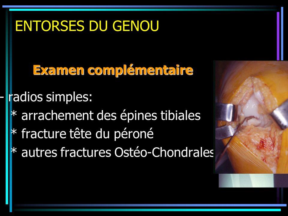 ENTORSES DU GENOU - radios simples: * arrachement des épines tibiales * fracture tête du péroné * autres fractures Ostéo-Chondrales Examen complémenta