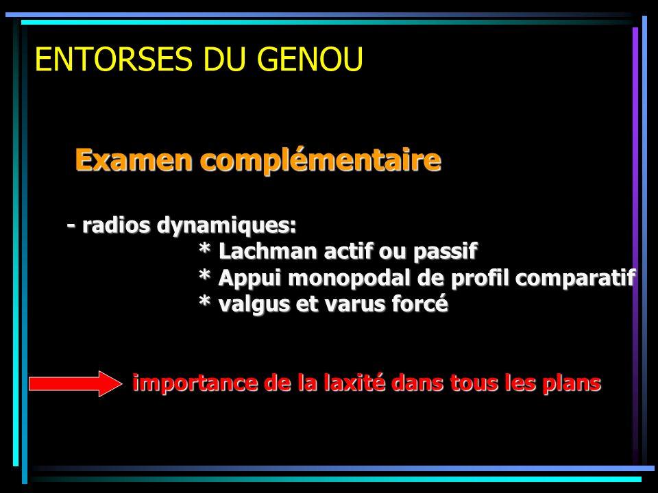 ENTORSES DU GENOU Examen complémentaire - radios dynamiques: * Lachman actif ou passif * Appui monopodal de profil comparatif * valgus et varus forcé