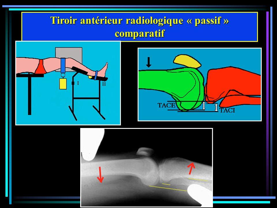 Tiroir antérieur radiologique « passif » comparatif