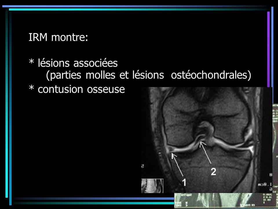 IRM montre: * lésions associées (parties molles et lésions ostéochondrales) * contusion osseuse