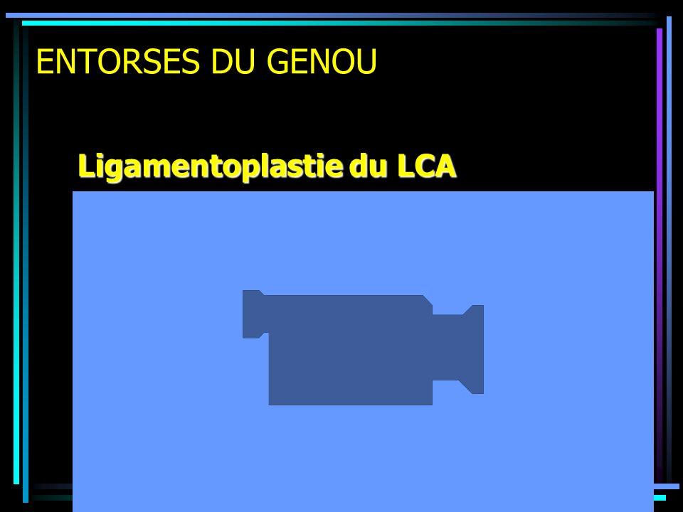 ENTORSES DU GENOU Ligamentoplastie du LCA