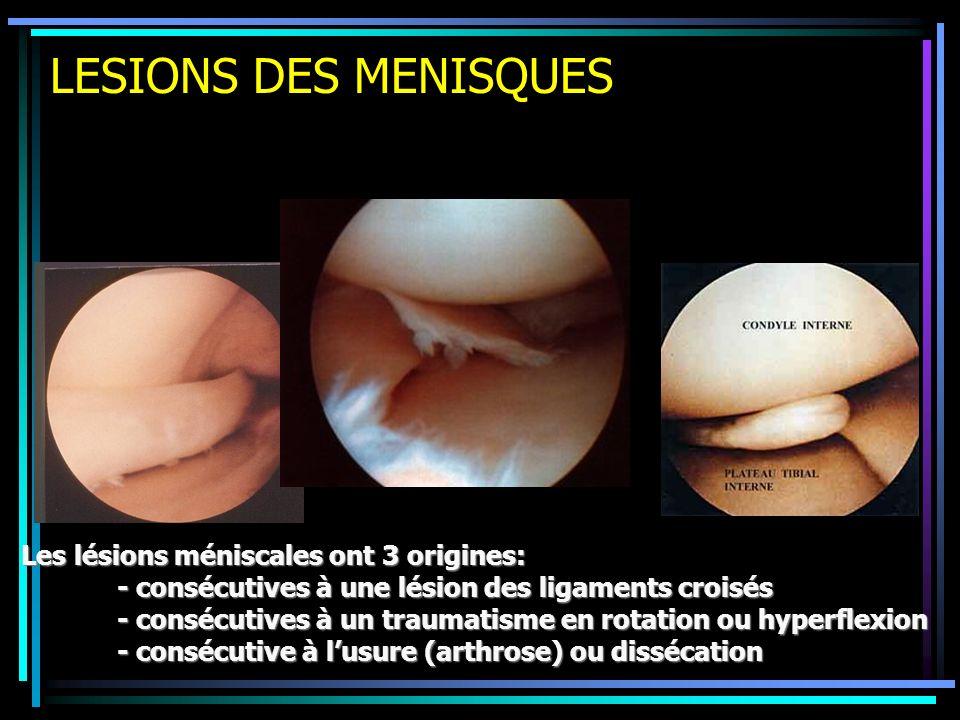 LESIONS DES MENISQUES Les lésions méniscales ont 3 origines: - consécutives à une lésion des ligaments croisés - consécutives à un traumatisme en rota