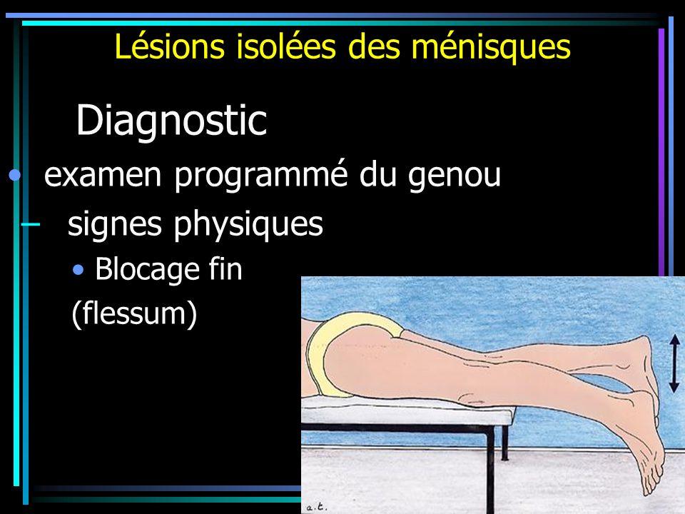 Lésions isolées des ménisques Diagnostic examen programmé du genou – signes physiques Blocage fin (flessum)