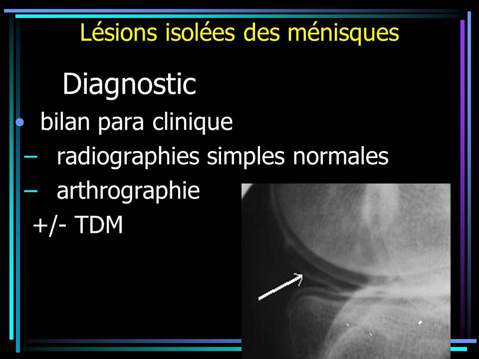 Lésions isolées des ménisques Diagnostic bilan para clinique – radiographies simples normales – arthrographie +/- TDM