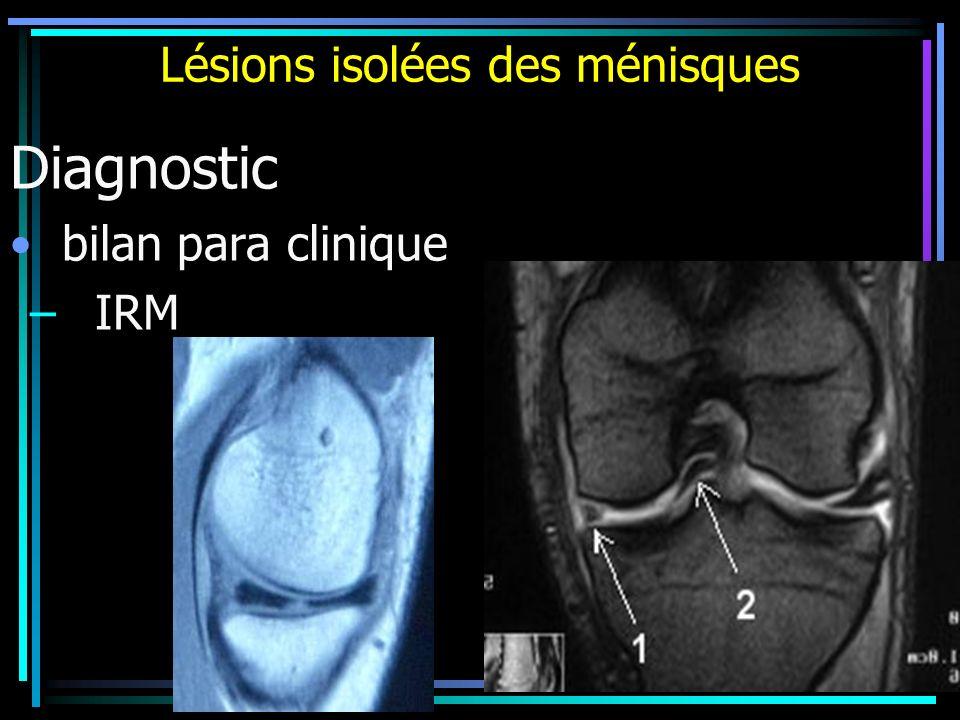 Lésions isolées des ménisques Diagnostic bilan para clinique – IRM