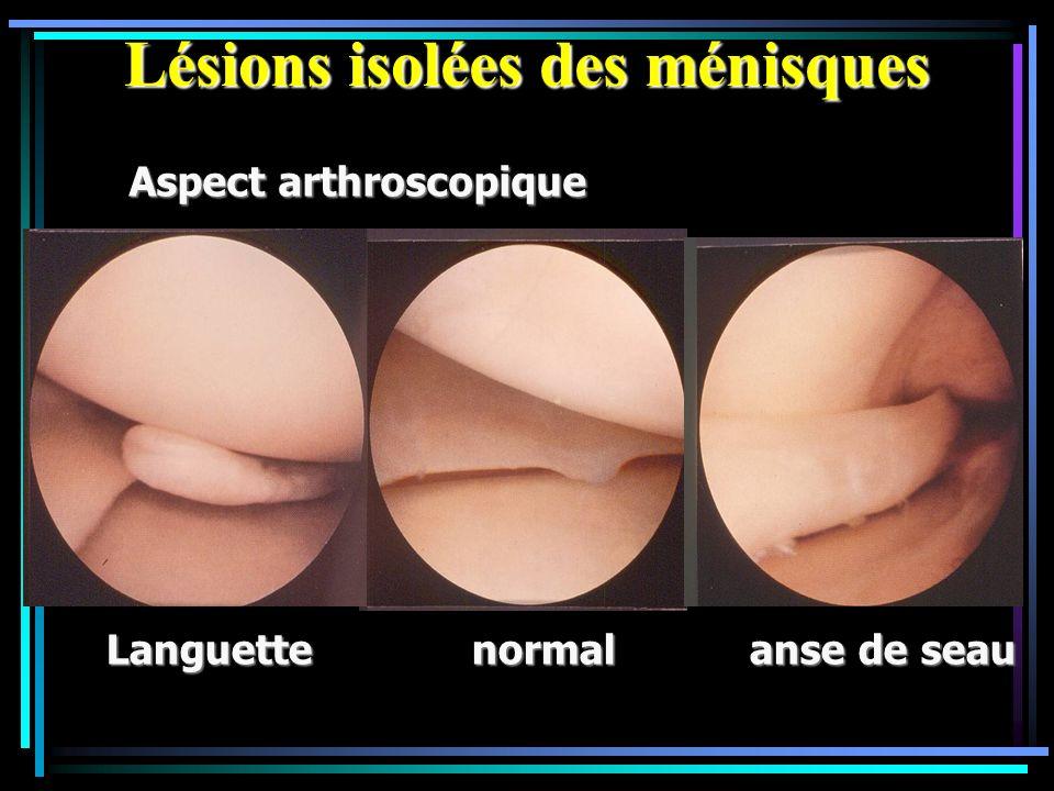 Lésions isolées des ménisques Aspect arthroscopique Languette normal anse de seau