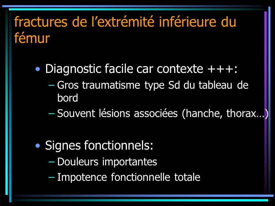 fractures de lextrémité inférieure du fémur Diagnostic facile car contexte +++: –Gros traumatisme type Sd du tableau de bord –Souvent lésions associée