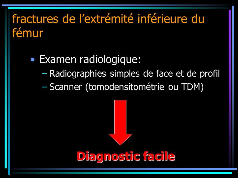 fractures de lextrémité inférieure du fémur Examen radiologique: –Radiographies simples de face et de profil –Scanner (tomodensitométrie ou TDM) Diagn