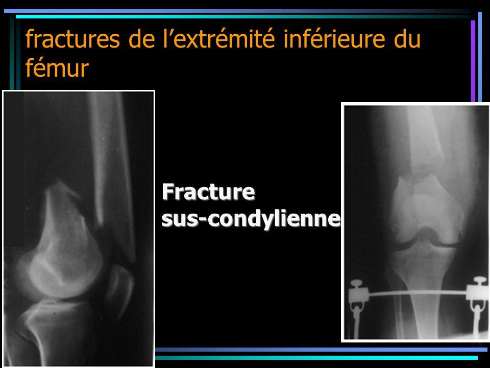 fractures de lextrémité inférieure du fémur Fracture sus-condylienne