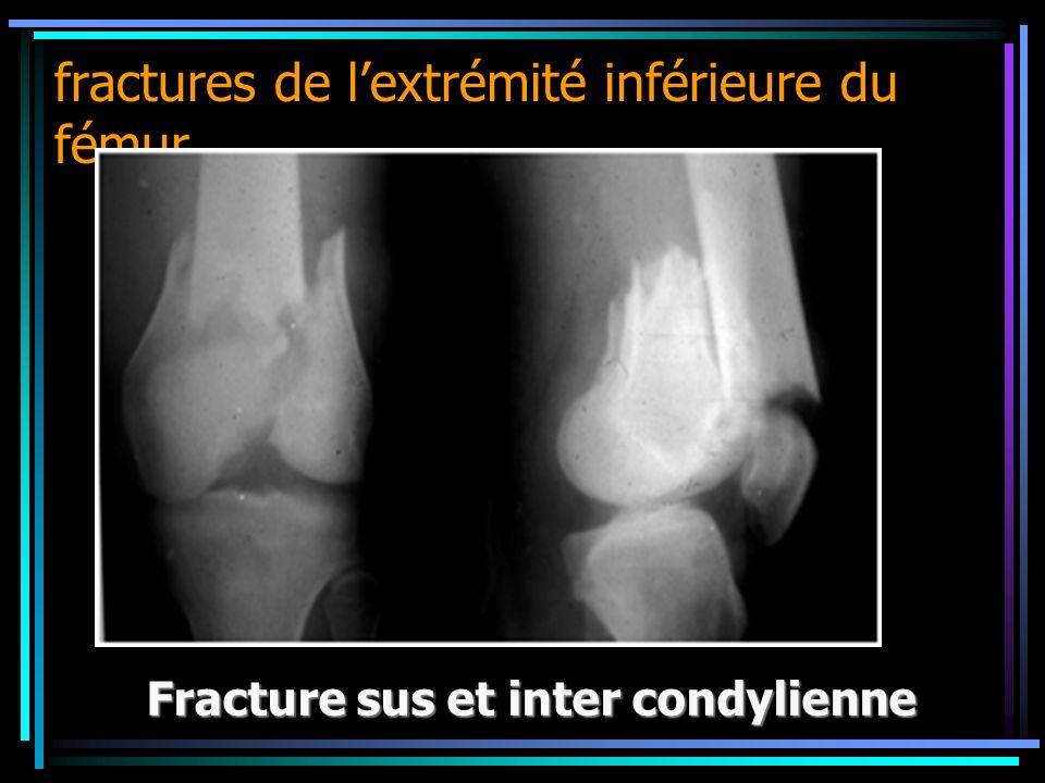 fractures de lextrémité inférieure du fémur Fracture sus et inter condylienne