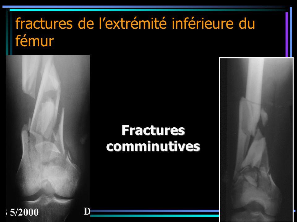 fractures de lextrémité inférieure du fémur Fracturescomminutives