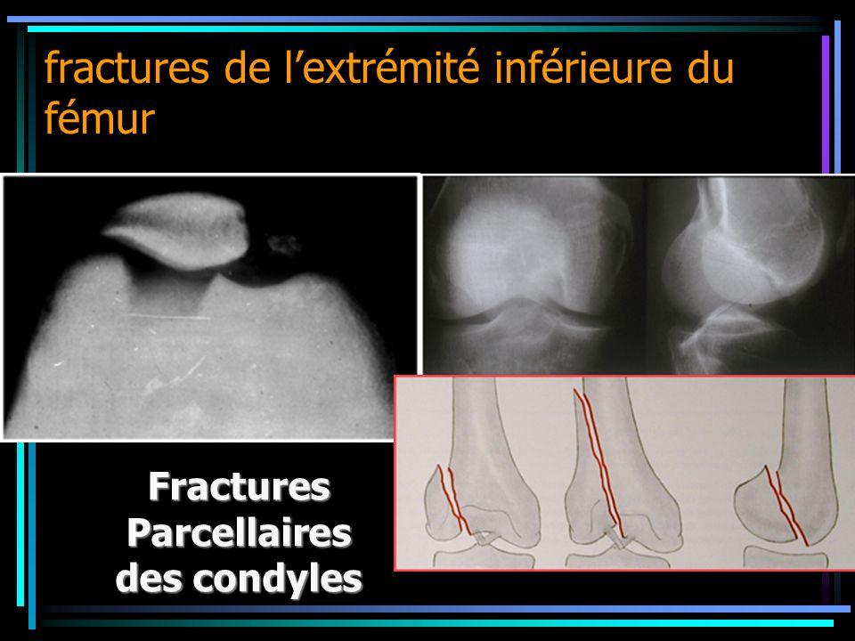 Fractures Parcellaires des condyles