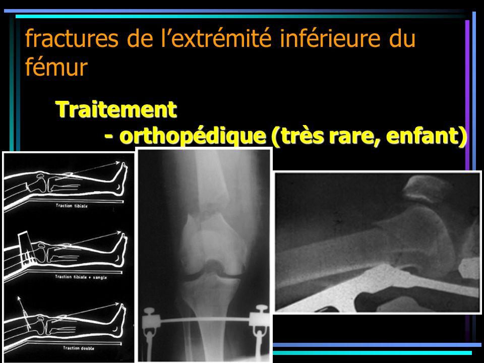 fractures de lextrémité inférieure du fémur Traitement - orthopédique (très rare, enfant)