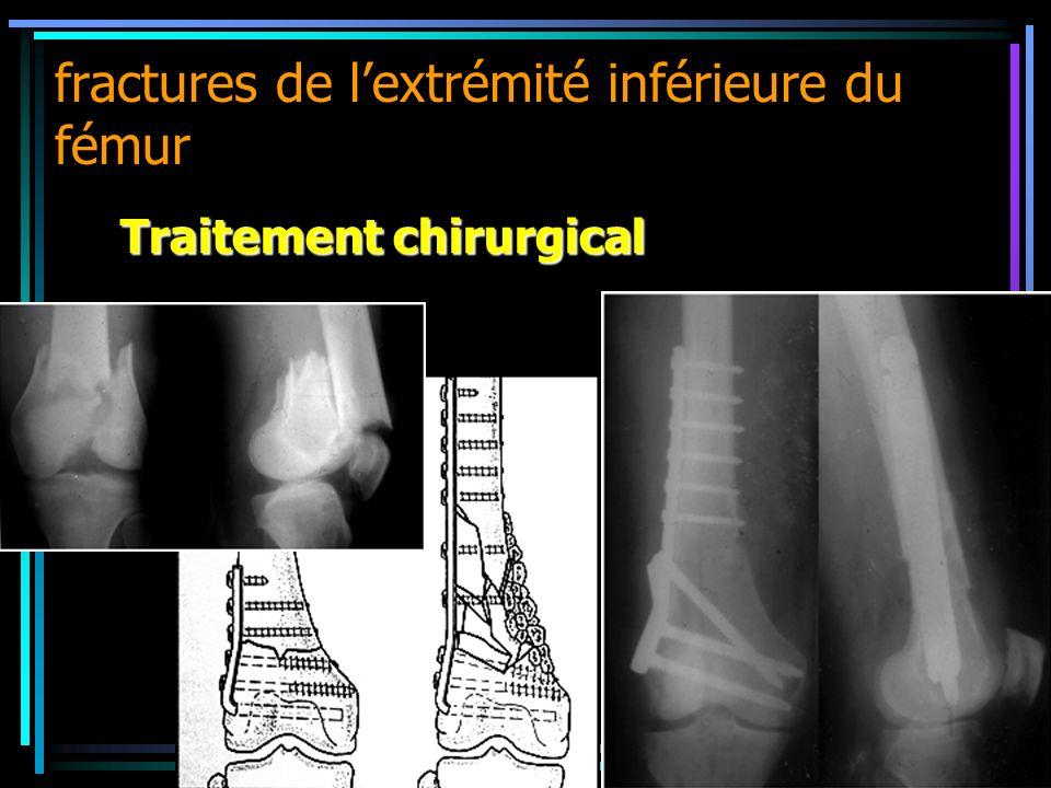 fractures de lextrémité inférieure du fémur Traitement chirurgical