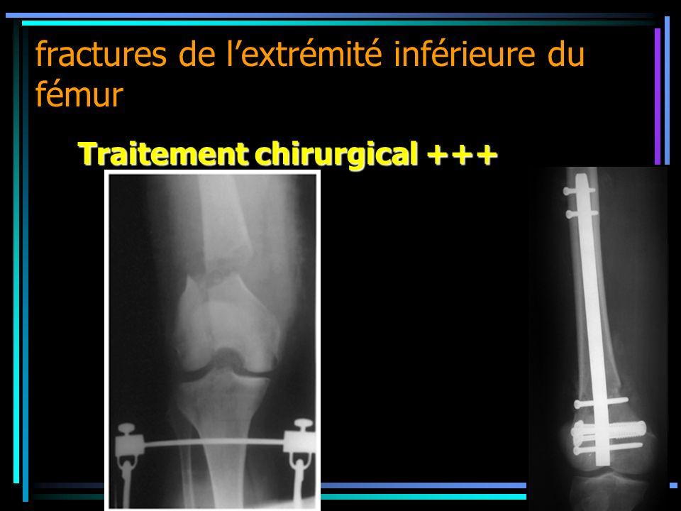 fractures de lextrémité inférieure du fémur Traitement chirurgical +++