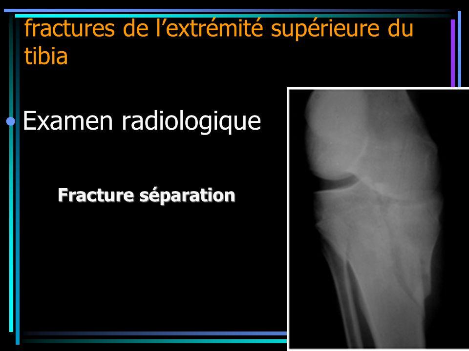 fractures de lextrémité supérieure du tibia Examen radiologique Fracture séparation