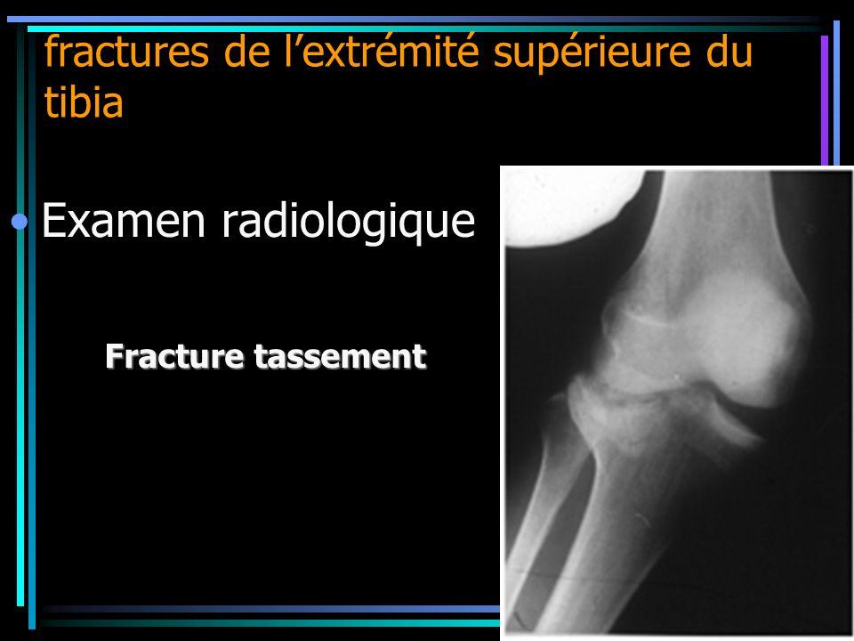 fractures de lextrémité supérieure du tibia Fracture tassement Examen radiologique