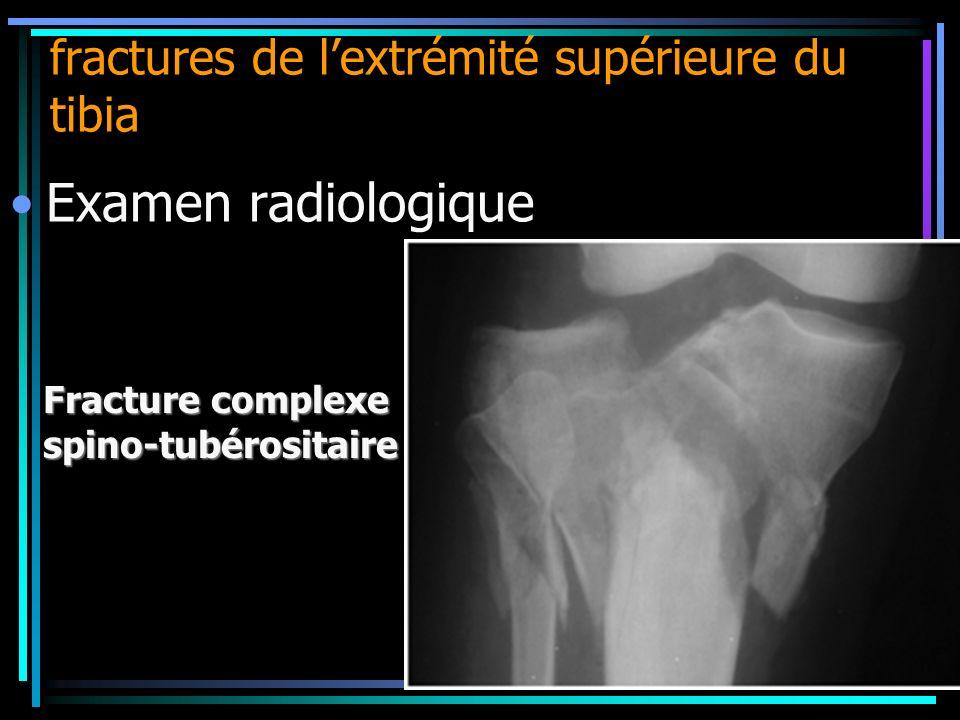 fractures de lextrémité supérieure du tibia Fracture complexe spino-tubérositaire Examen radiologique