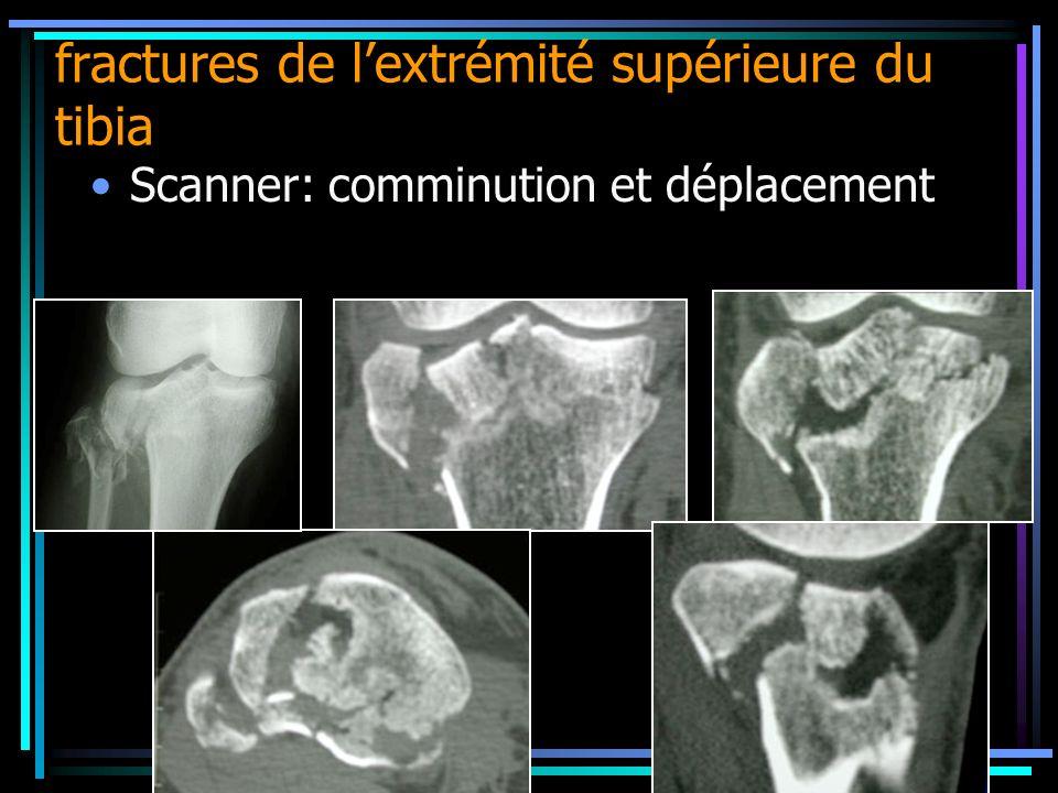 Scanner: comminution et déplacement fractures de lextrémité supérieure du tibia