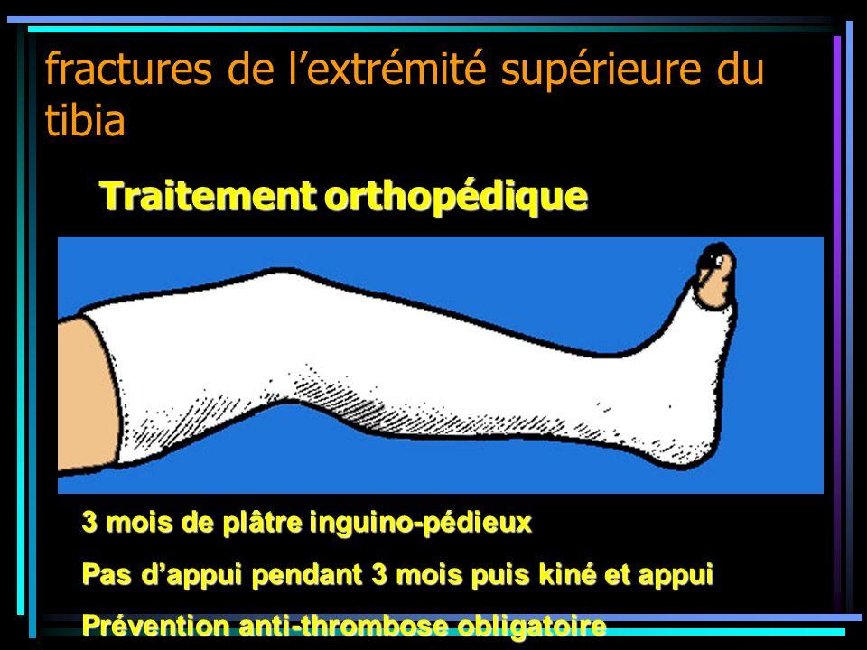 fractures de lextrémité supérieure du tibia Traitement orthopédique 3 mois de plâtre inguino-pédieux Pas dappui pendant 3 mois puis kiné et appui Prév