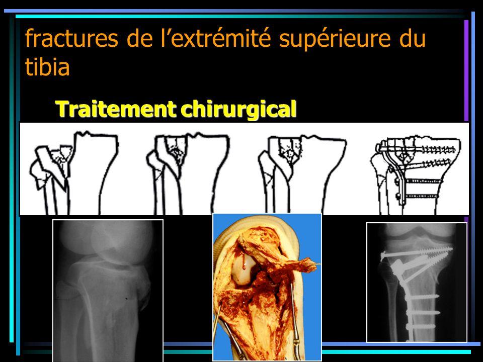 fractures de lextrémité supérieure du tibia Traitement chirurgical