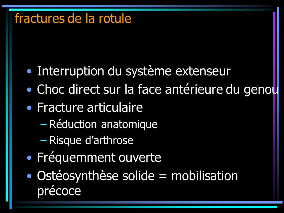 Interruption du système extenseur Choc direct sur la face antérieure du genou Fracture articulaire –Réduction anatomique –Risque darthrose Fréquemment