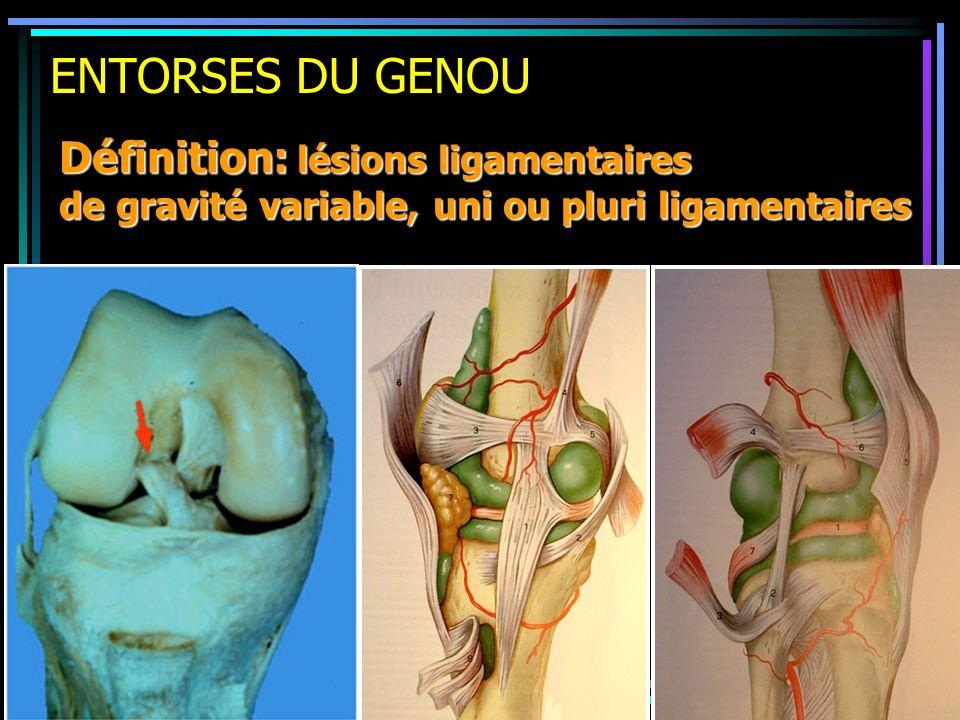 ENTORSES DU GENOU Définition: lésions ligamentaires de gravité variable, uni ou pluri ligamentaires