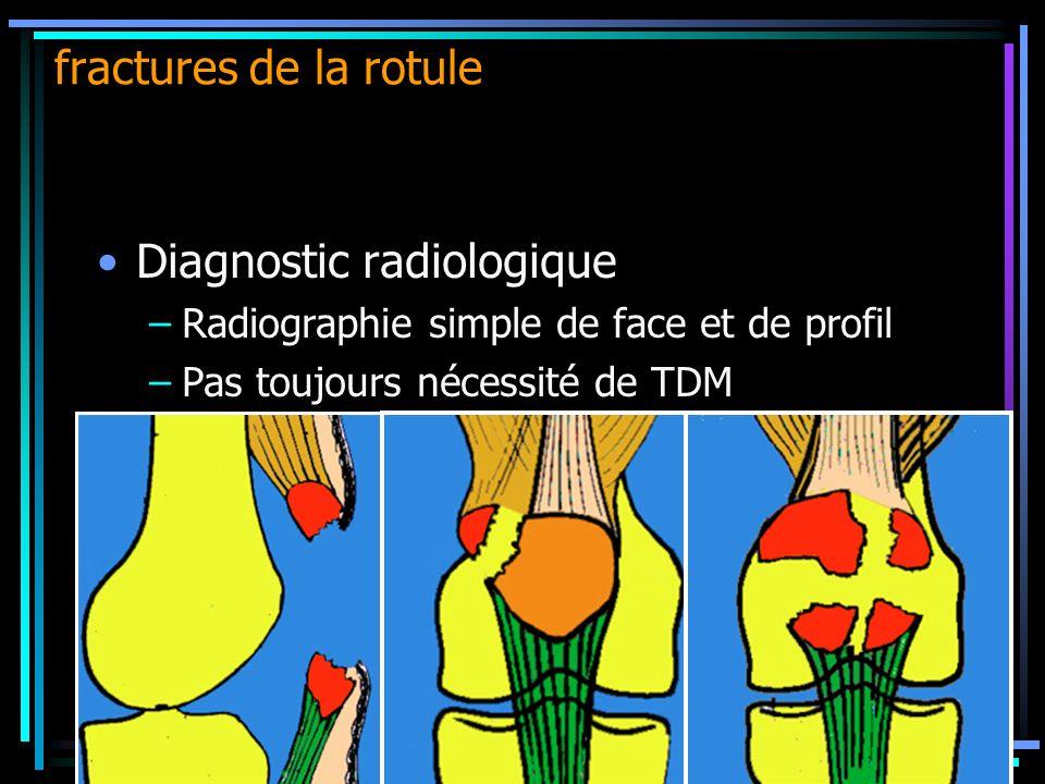 Diagnostic radiologique –Radiographie simple de face et de profil –Pas toujours nécessité de TDM fractures de la rotule