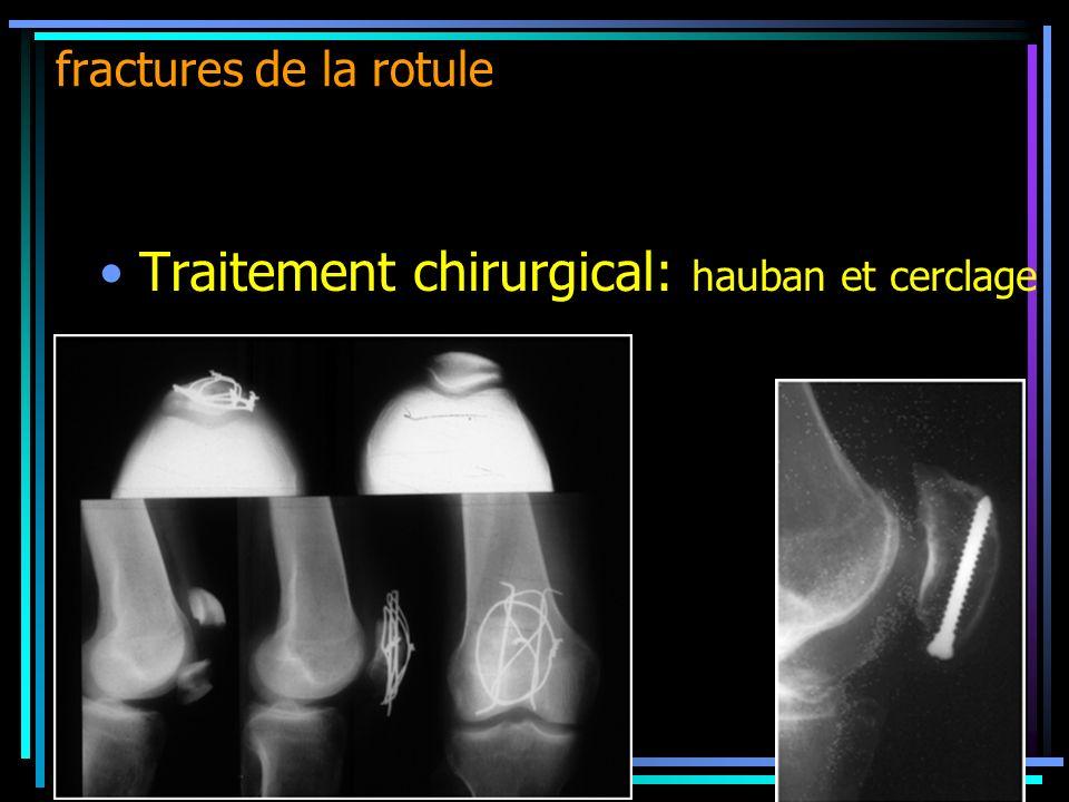 Traitement chirurgical: hauban et cerclage fractures de la rotule