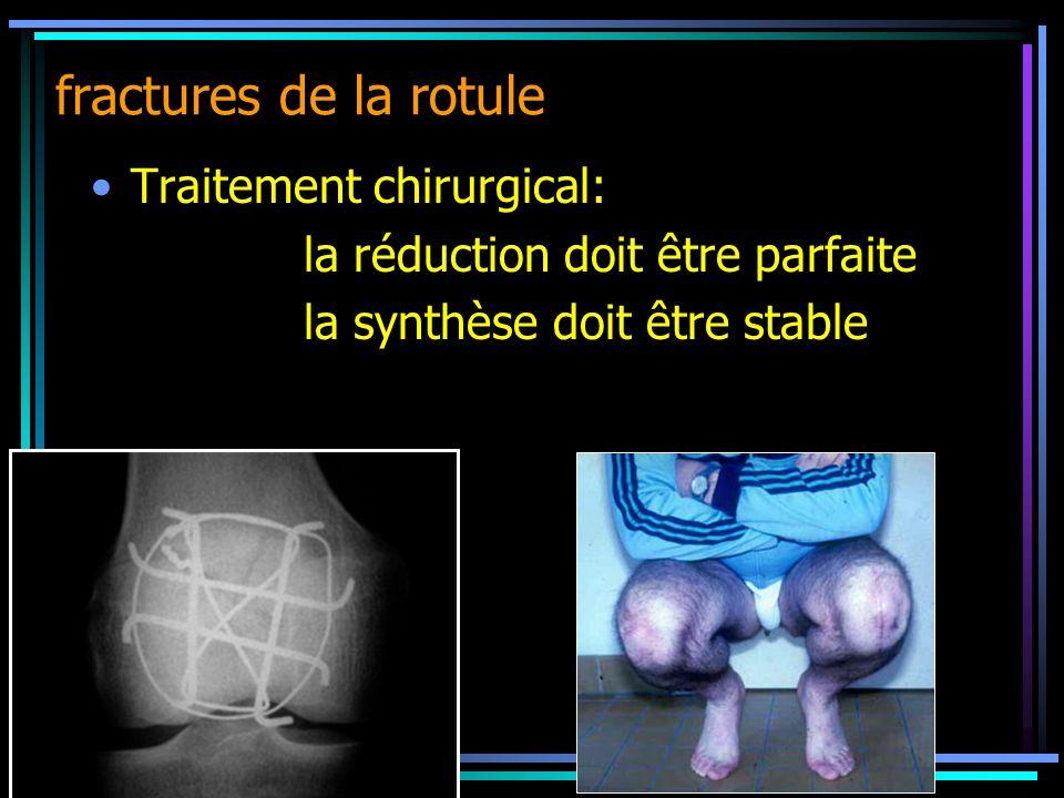 Traitement chirurgical: la réduction doit être parfaite la synthèse doit être stable