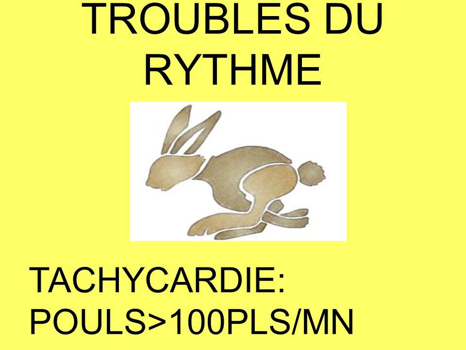 Tachycardies Tachycardie Sinusale Rythme sinusal accéléré (fièvre, effort, émotion,anémie…