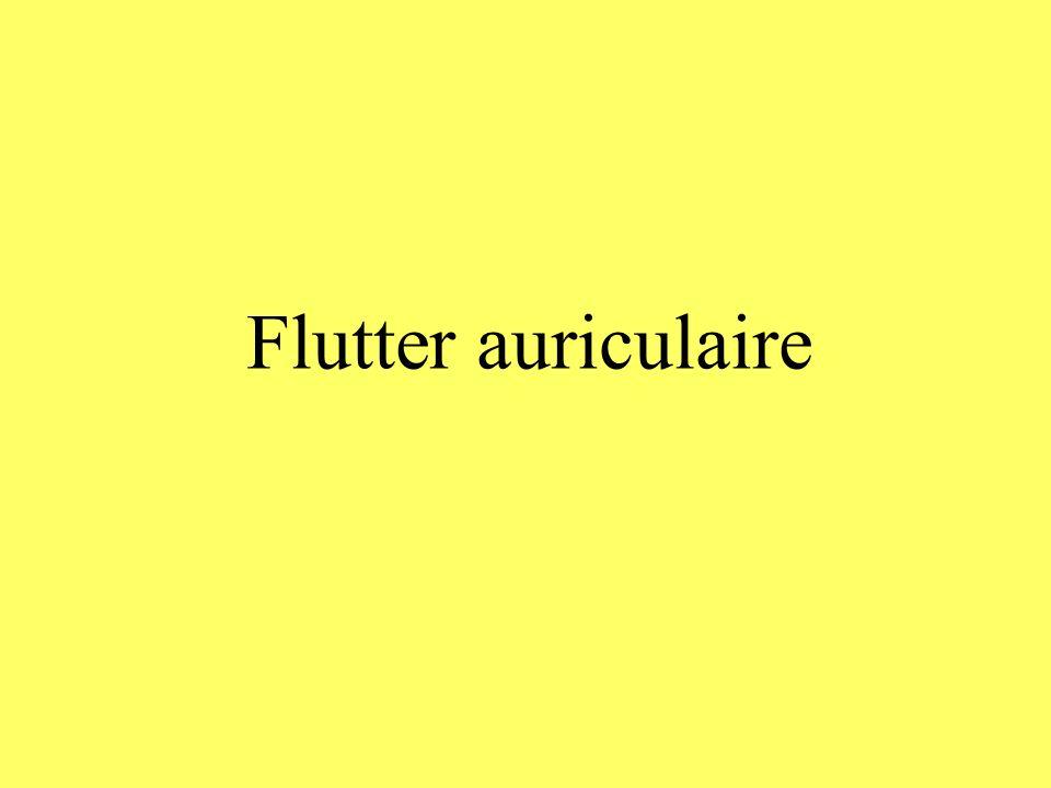 Flutter auriculaire