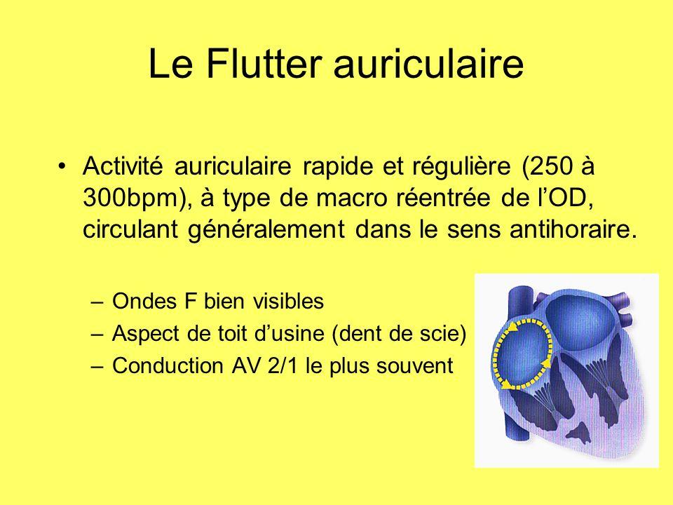 Le Flutter auriculaire Activité auriculaire rapide et régulière (250 à 300bpm), à type de macro réentrée de lOD, circulant généralement dans le sens a