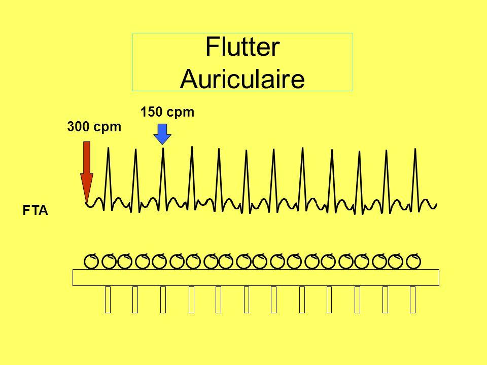 Flutter Auriculaire 300 cpm 150 cpm FTA <<<<<<<<<<<<<<<<<<<<