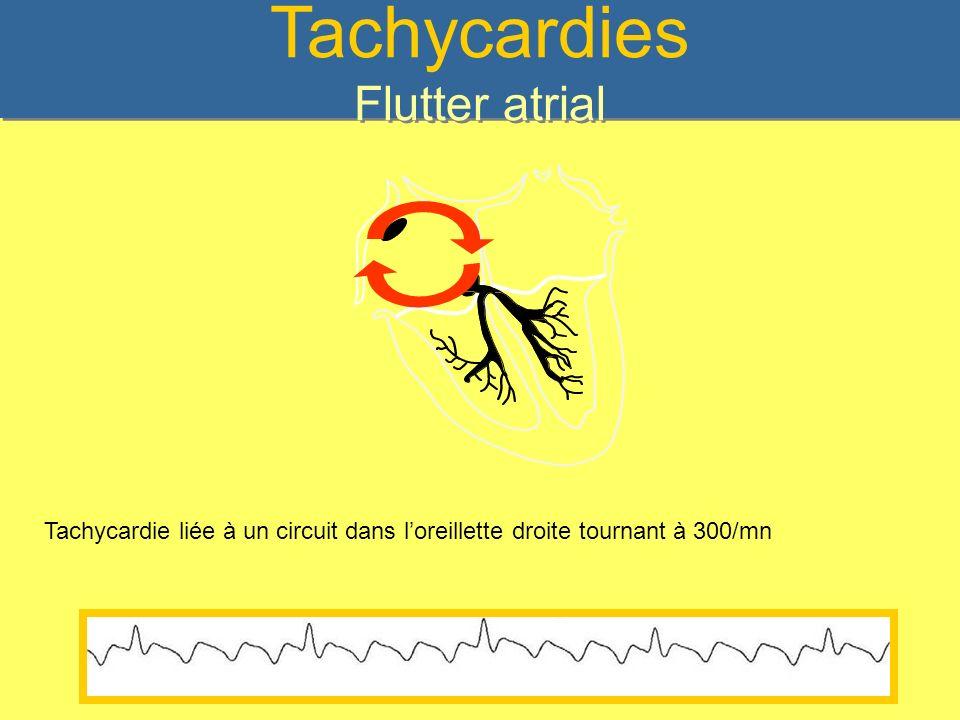 Tachycardies Flutter atrial Tachycardie liée à un circuit dans loreillette droite tournant à 300/mn