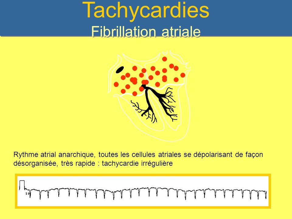 Tachycardies Fibrillation atriale Rythme atrial anarchique, toutes les cellules atriales se dépolarisant de façon désorganisée, très rapide : tachycar