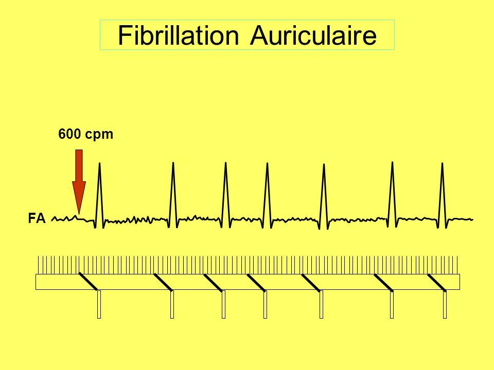 Fibrillation Auriculaire 600 cpm FA