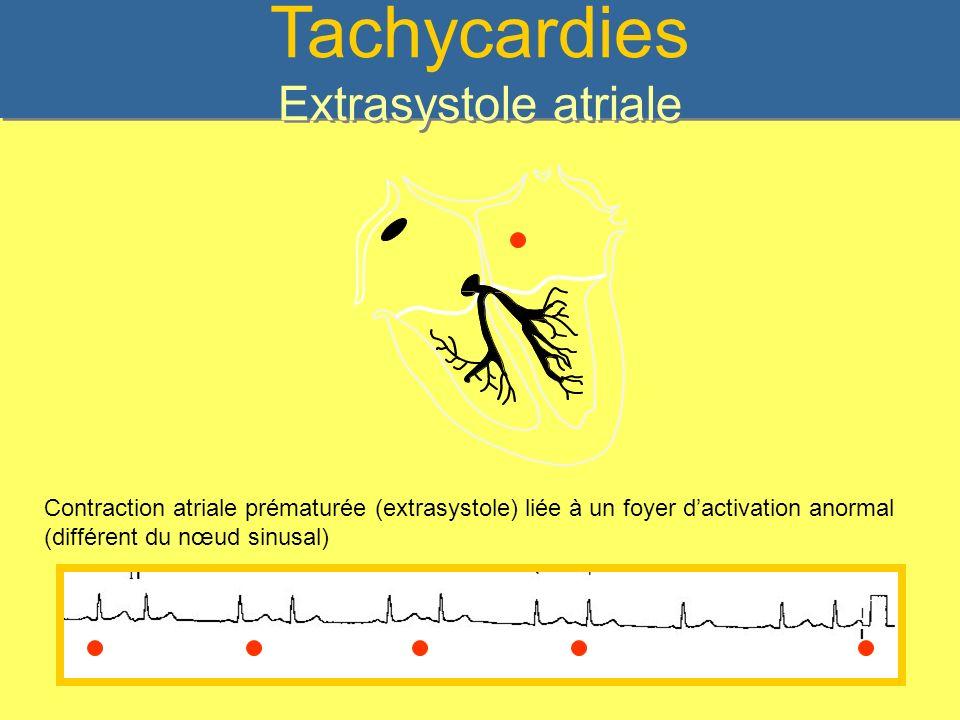 La Tachycardie atriale Dite: « automatique » Elle naît dans un foyer ectopique au niveau de lOD ou de lOG Conduction AV constante ou variable en fonction de la fréquence de la T.A.