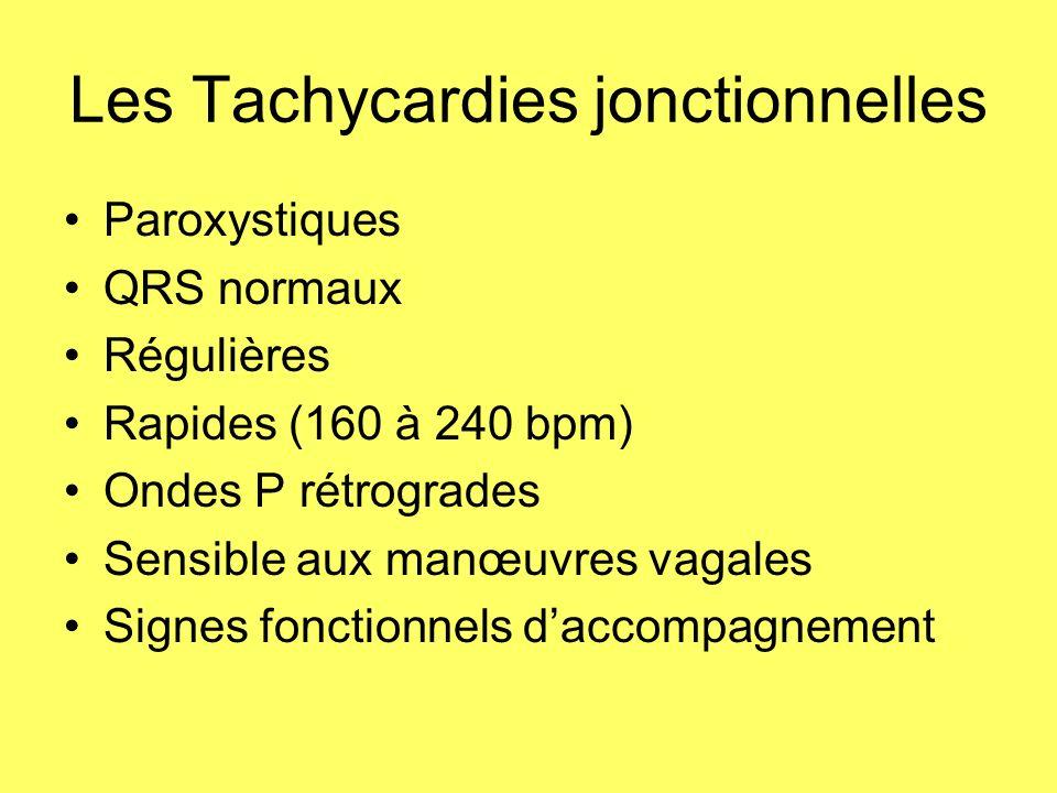 Les Tachycardies jonctionnelles Paroxystiques QRS normaux Régulières Rapides (160 à 240 bpm) Ondes P rétrogrades Sensible aux manœuvres vagales Signes