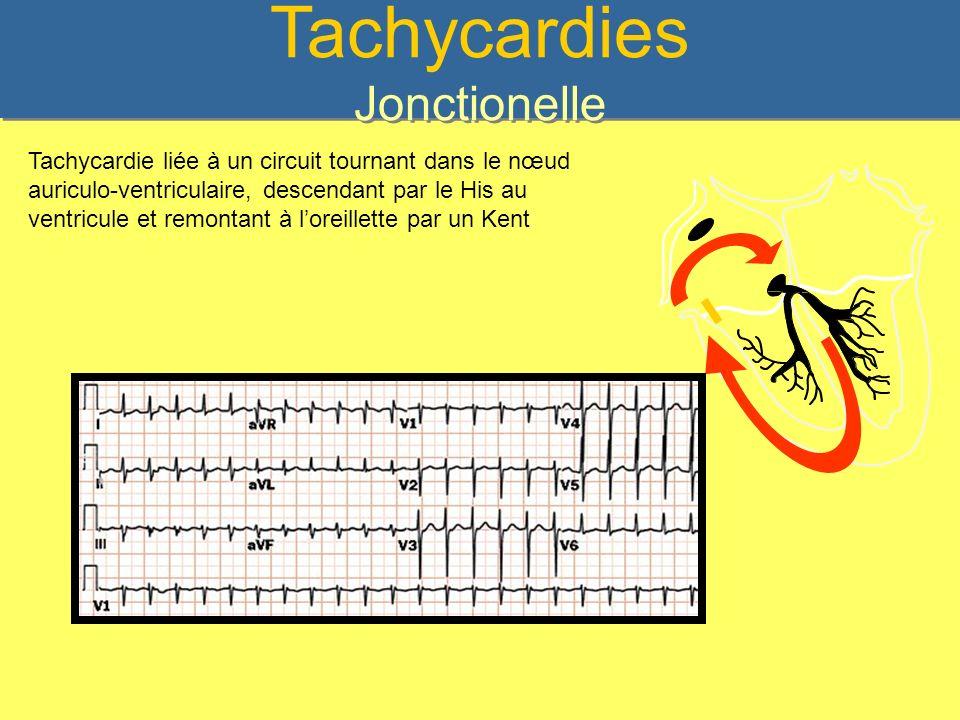 Tachycardies Jonctionelle Tachycardie liée à un circuit tournant dans le nœud auriculo-ventriculaire, descendant par le His au ventricule et remontant