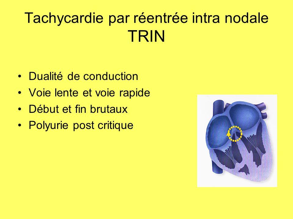 Tachycardie par réentrée intra nodale TRIN Dualité de conduction Voie lente et voie rapide Début et fin brutaux Polyurie post critique