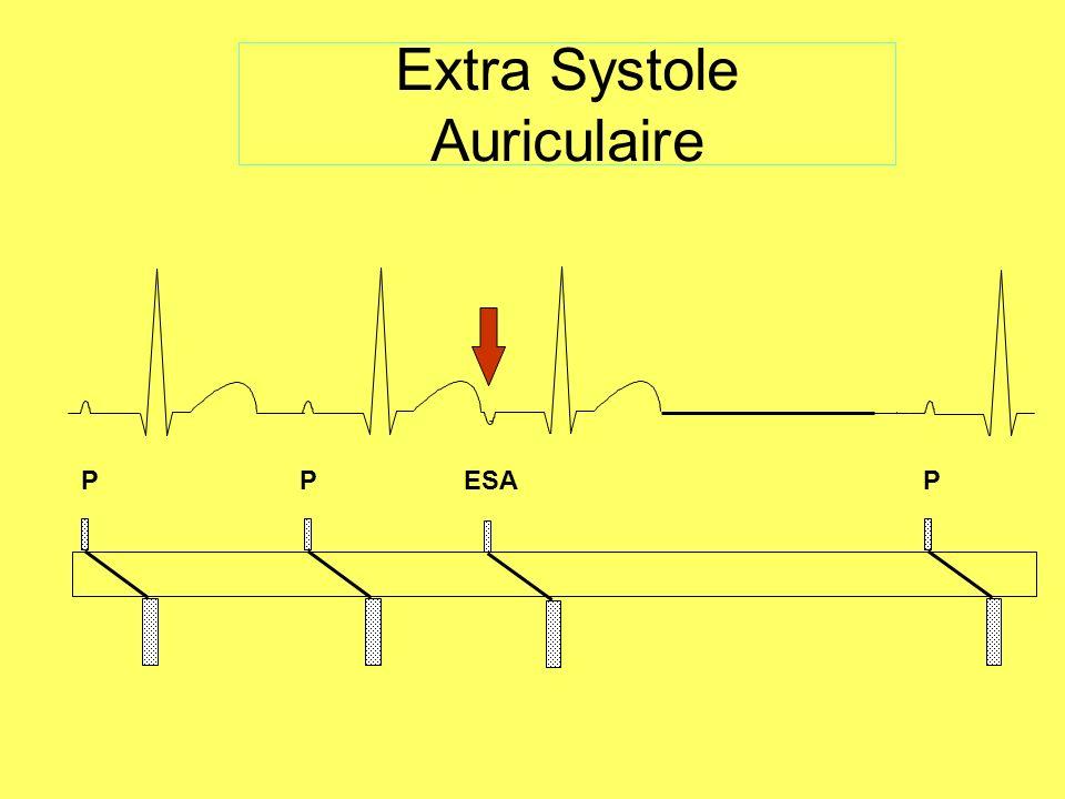 La Fibrillation auriculaire Activité auriculaire rapide (>350bpm), désordonnée, provenant de foyers multiples.