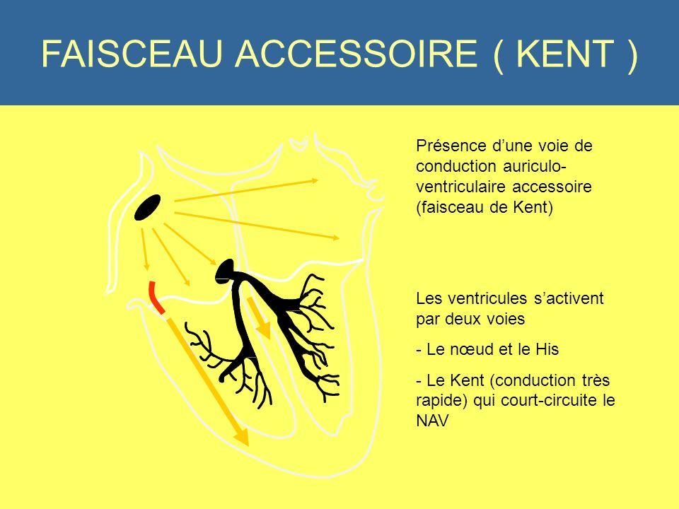 PR Court < 120 ms FAISCEAU ACCESSOIRE ( KENT ) Présence dune voie de conduction auriculo- ventriculaire accessoire (faisceau de Kent) Les ventricules