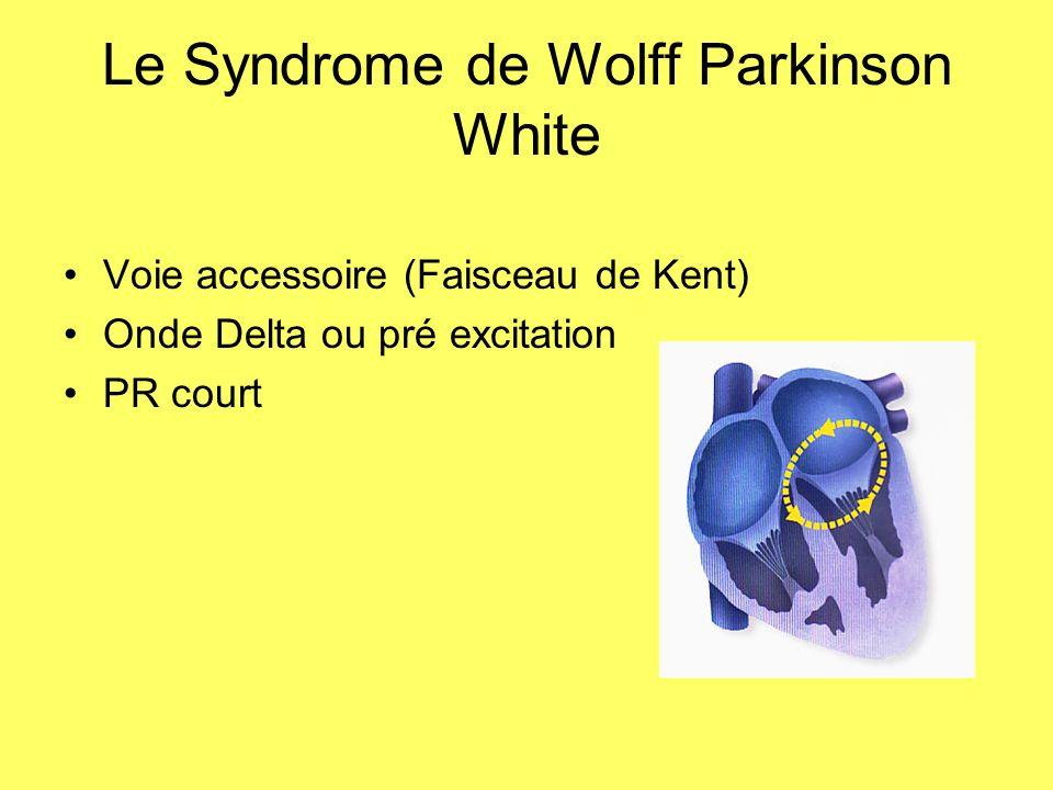 Le Syndrome de Wolff Parkinson White Voie accessoire (Faisceau de Kent) Onde Delta ou pré excitation PR court