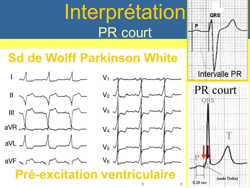 PR Court < 120 ms Pré-excitation ventriculaire Sd de Wolff Parkinson White Interprétation PR court