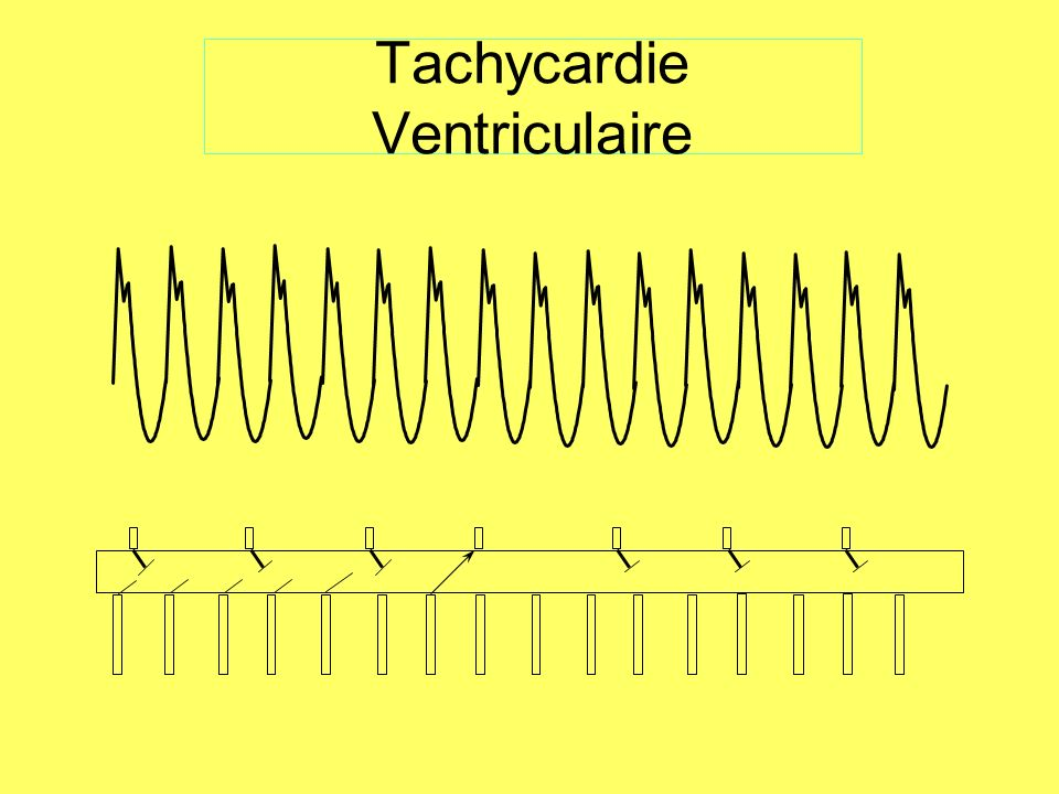 Tachycardie Ventriculaire