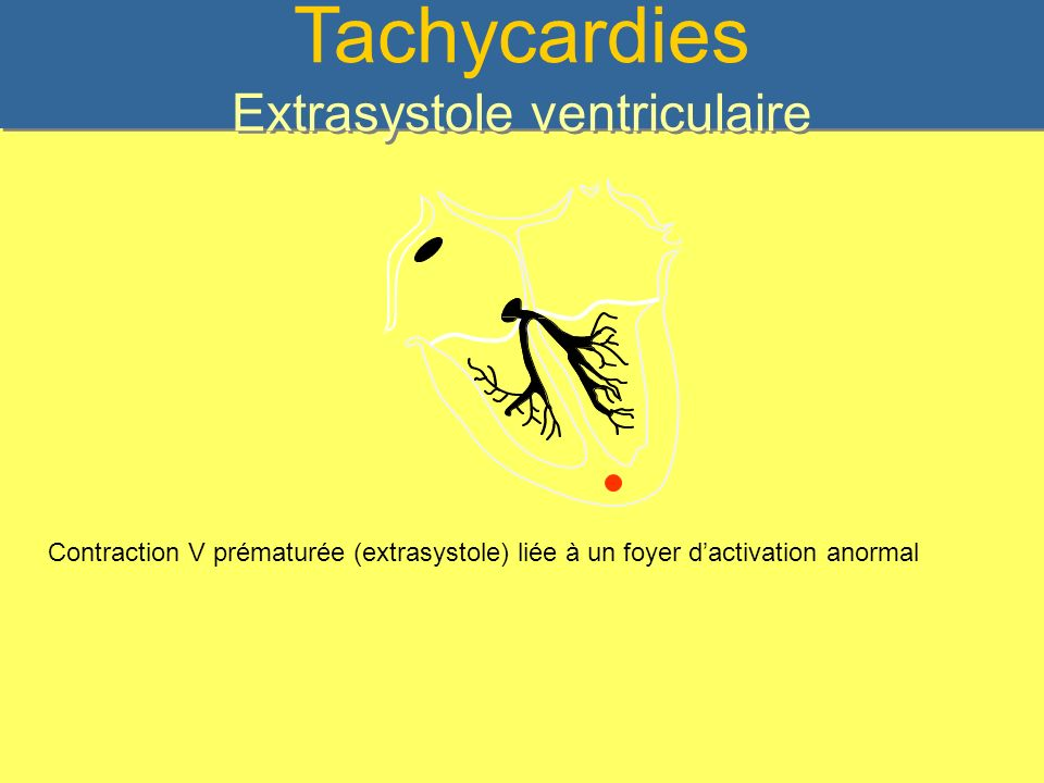 Tachycardies Extrasystole ventriculaire Contraction V prématurée (extrasystole) liée à un foyer dactivation anormal