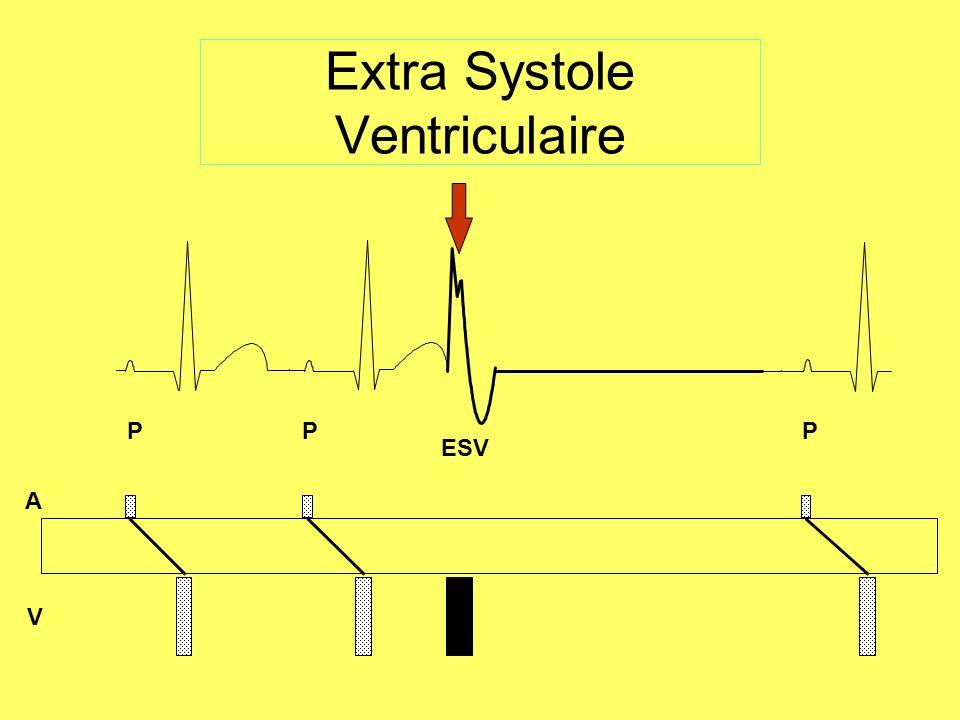 Le Flutter ventriculaire Forme de TV très rapide (>250bpm) Régulier Ondes de type sinusoïdale « Dent de scie » Perte de lactivité mécanique ACR