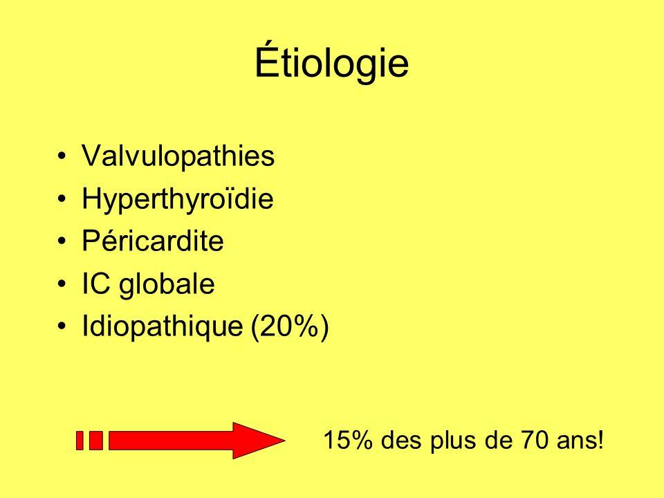 Étiologie Valvulopathies Hyperthyroïdie Péricardite IC globale Idiopathique (20%) 15% des plus de 70 ans!